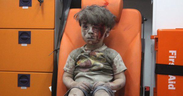 Remember the Aleppo boy who was wounded in an airstrike? Here's how he looks like after a year of bombing