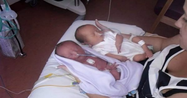 "Doctor Crushed Couple Expecting Identical Twins With ""Bad News."" Five Years Later, He Was Dead Wrong!"