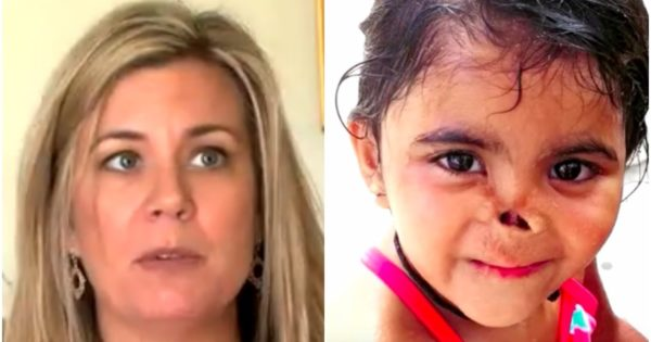 Mom Adopts Orphan Dumped in Trash With Nose Eaten by Animals. Years Later, She Completely Transforms