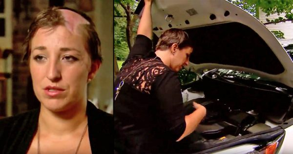 Mom of four leaned over car's engine to fix simple issue. Now she's sending horrific warning to others