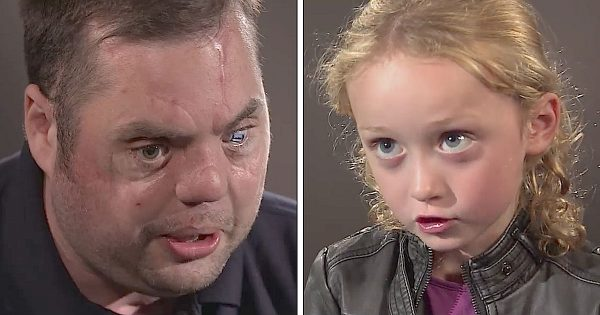 "Disfigured veteran meets 5-year-old girl. Her reaction when he says ""Hi"" has millions in tears"