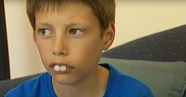 Boy bullied and called 'Rabbit Boy' because of his giant teeth – then a stranger see his face on TV